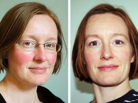 one woman s battle with a skin condition gulfnews com