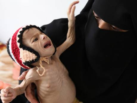 A woman holds her malnourished child at a therapeutic feeding centre at Al Sabyeen hospital