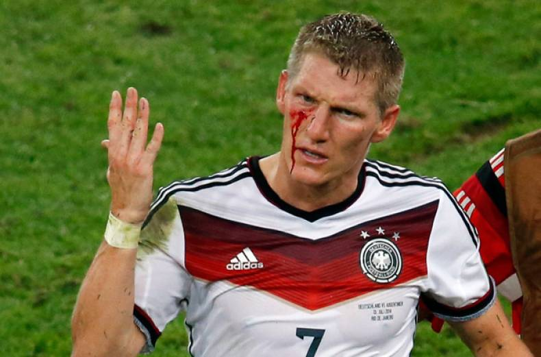 germany-s-bastian-schweinsteiger-reacts-as-blood-flows-down-his-face-after-he-was-fouled