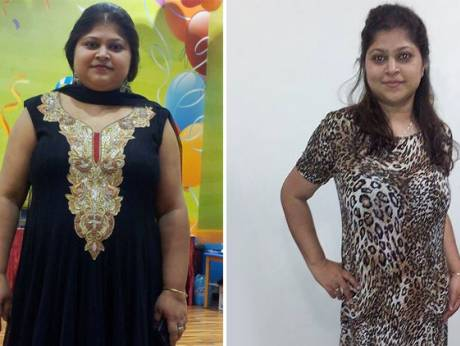 How to lose weight fast home remedies natural photo 4