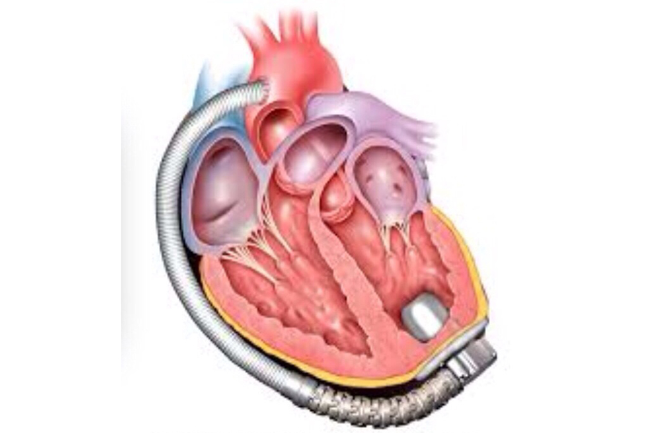 utilitarianism heart transplant You decide utilitarian ethics  i had just received a call and was notified that a heart has become available for a transplant utilitarianism:.