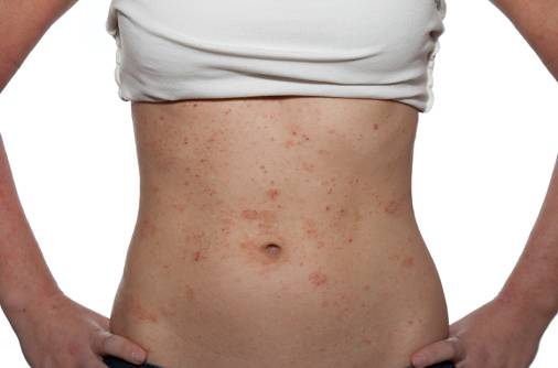 'I have small red patches on my stomach, chest'