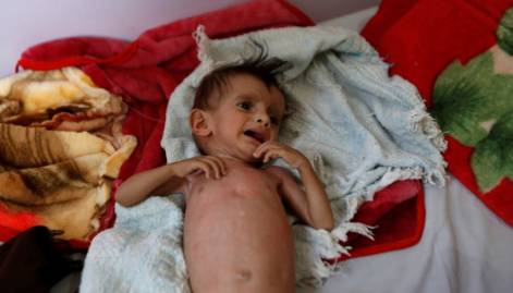 Millions going hungry in Yemen