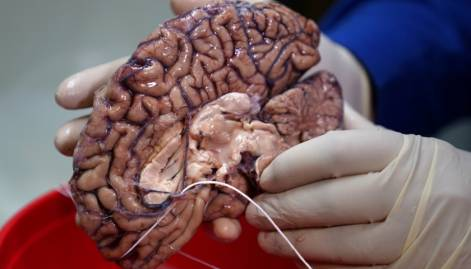 Inside the Bronx's human brain bank