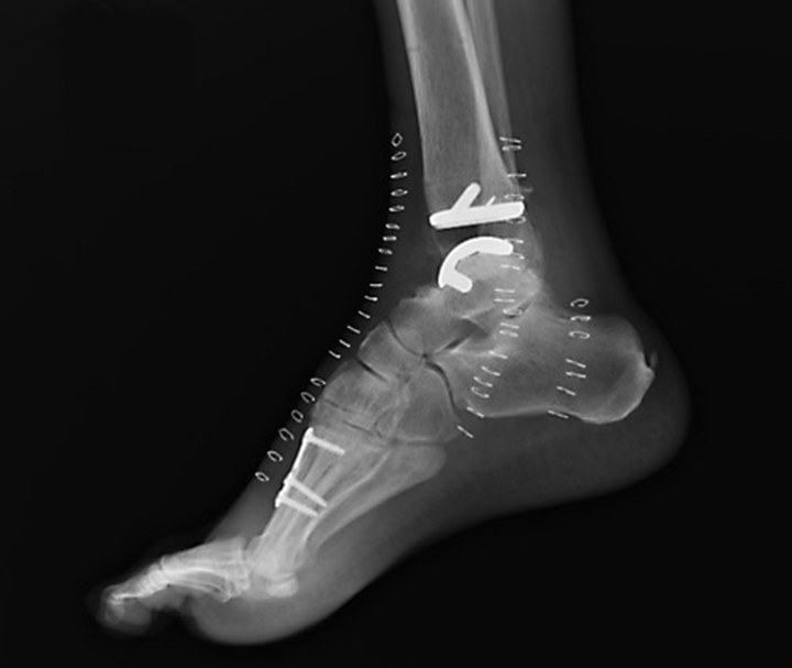WKR_171103_science_p13 ankle surgery