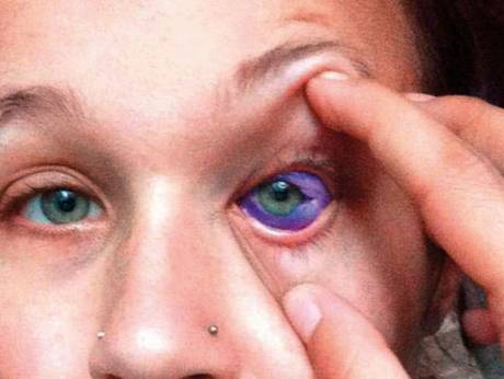 A model tattooed her eyeball purple says she now could lose her eye