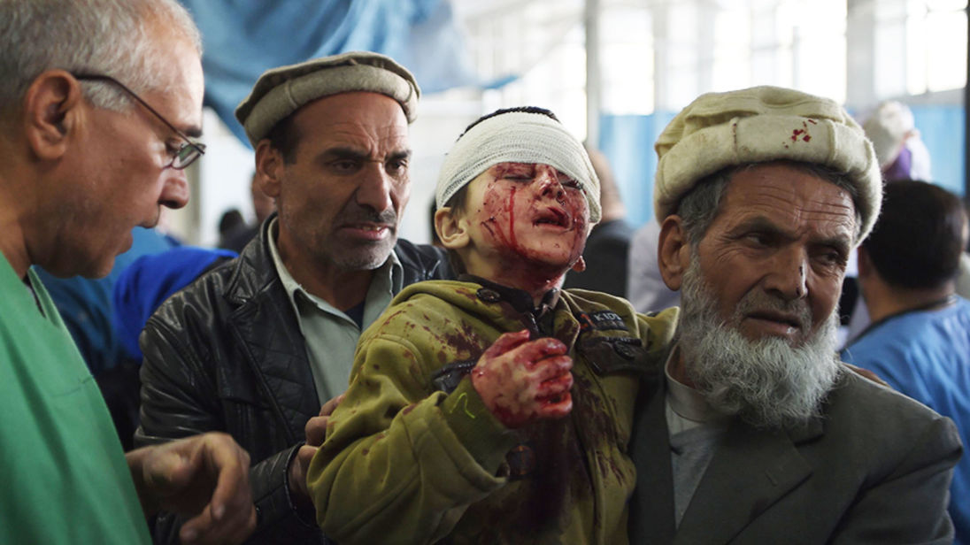 Suicide bomber driving ambulance kills at least 95. A child injured in the Kabul bombing is rushed t