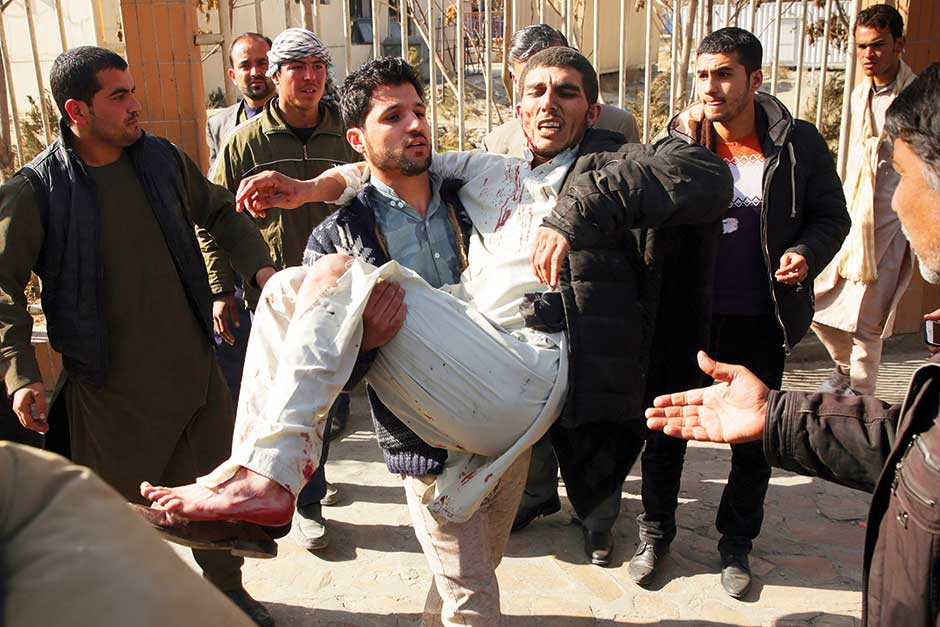 A wounded man is assisted at the site of a deadly suicide attack in Kabul, Afghanistan.