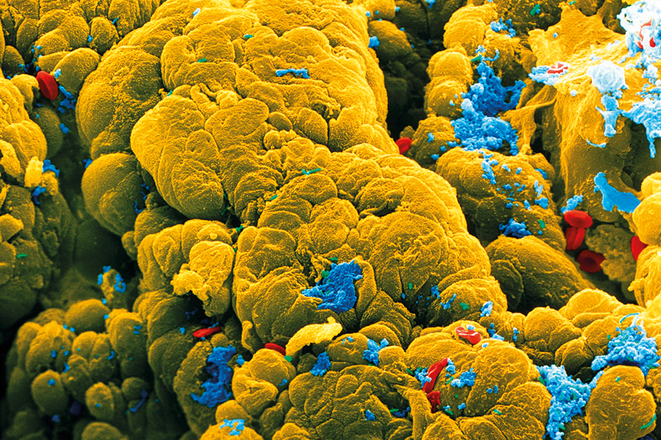 A colored electron micrograph
