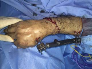 Saudi doctors reattach severed hand