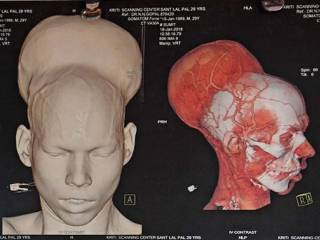 World's largest brain tumour removed