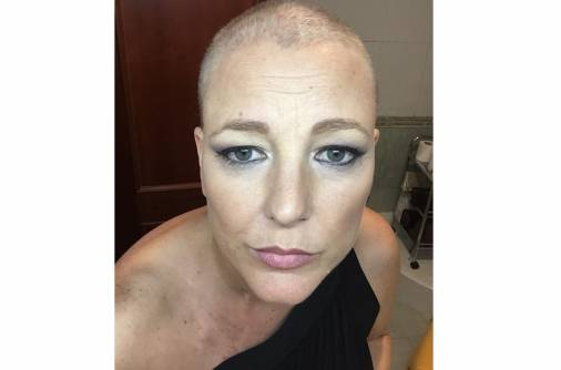 Cancer talk: It's only hair, it grows back